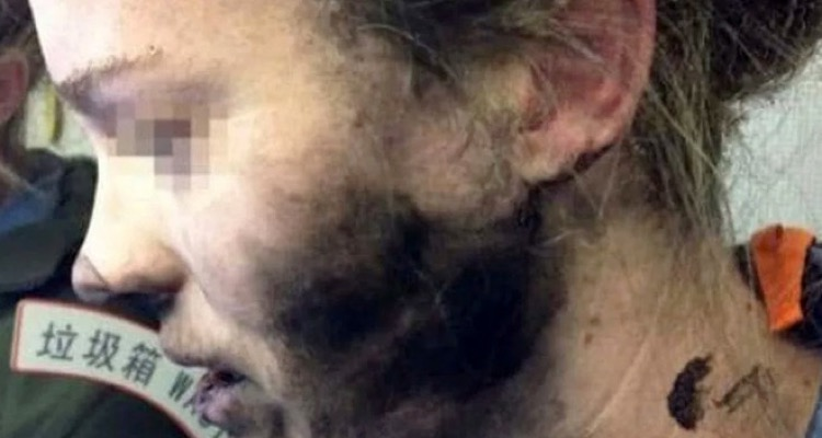 Picture of the woman burned by Apple's Beats by Dre headphones