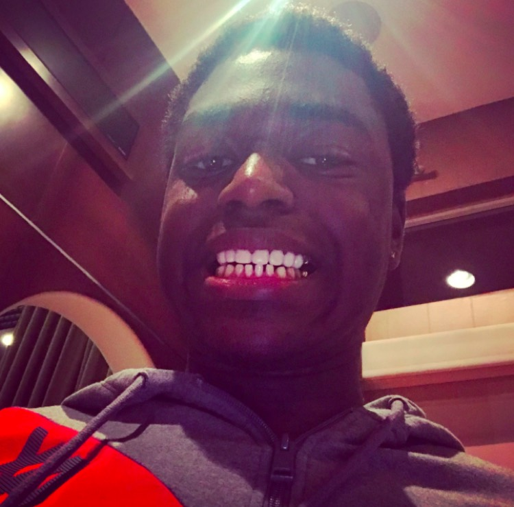 Kodak Black Surgically Removes His Gold Teeth Smile