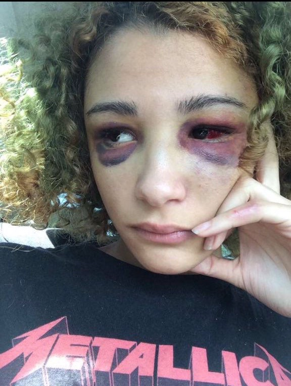XXXTentacion's Battered ex-Girlfriend Receives $35,000 In Donations for Reconstructive Eye Surgery (Explicit Photos)